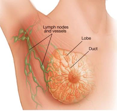 معلومات طبية عن سرطان الثدي