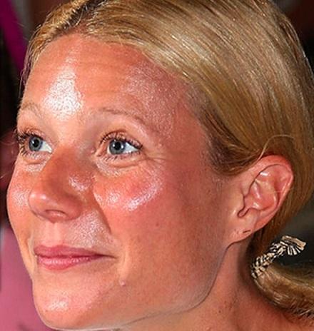 Como evitar los brillos y el exceso de sebo del rostro