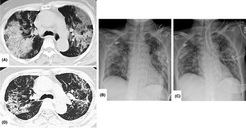 Figura 2: Radiografia de tórax (B e C) e tomografia computadorizada (A e D) em paciente com COVID-19.
