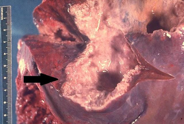 Patologi anatomi abses hati karena amebiasis parasit Entamoeba hystolitica histolitika histolitica, biopsi laboratorium fakultas kedokteran praktikum ujian kuliah tentiran asistensi jas lab gambaran mikroskop, pus nanah pada lobus hepatik