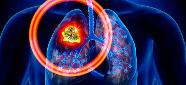 Komplikasi Kanker Paru paru ~ Obat Herbal Alami