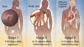 Daftar obat sipilis pada pria tanpa mengandung bahan kimia