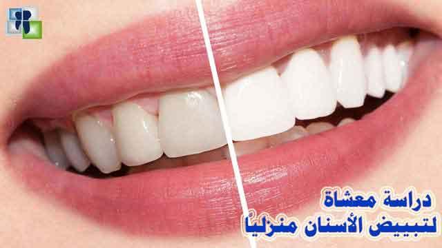 تبييض الأسنان عن طريق المعاجين المنزلية عند البالغين : دراسة معشاة