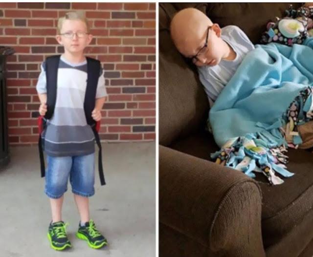 Мама опубликовала фотографию 10-летнего сына, больного раком. Её история полна боли и бесконечной любви