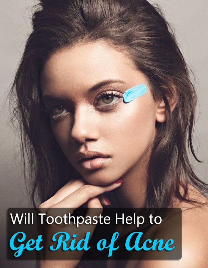 Will Toothpaste Help to Get Rid of Acne