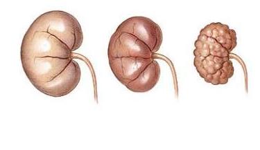 Insuficienca renale,insuficienca kronike, ushqimi te semundjet e veshkave, semundjet  e veshkave,veshket,semundjet e veshkave,hipernatremia,hyponatremia,hiperkalemia,hipokalemia