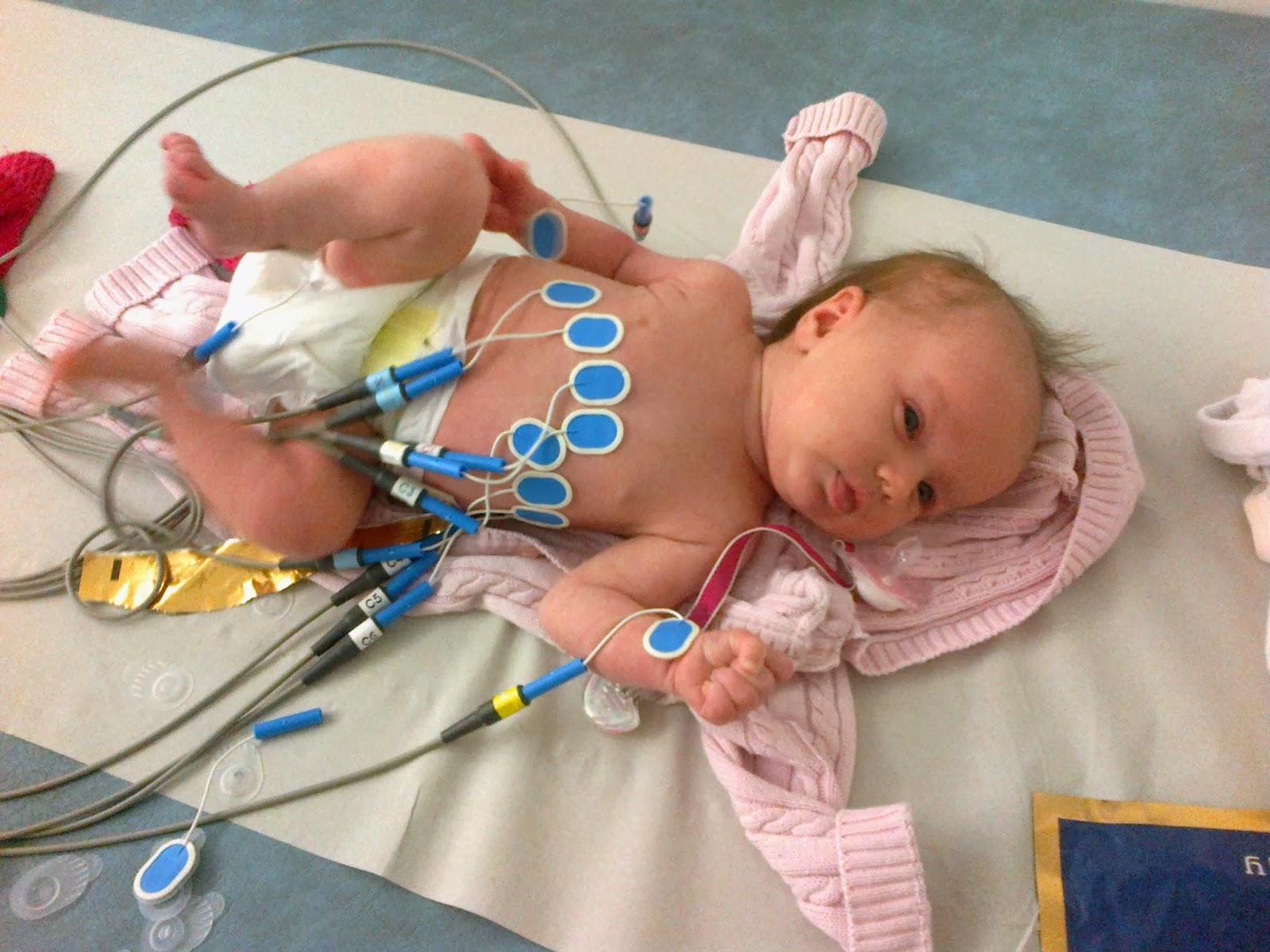 vauvalla reikä sydämessä