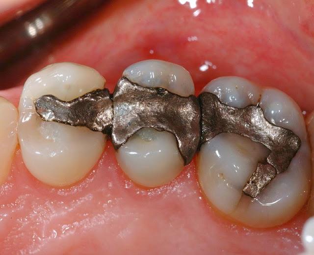 Bila Dokter Gigi Menambal Gigimu Dengan Menggunakan Bahan ini ... 210d52135d