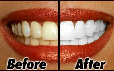 Tips How to Whiten Teeth Naturally