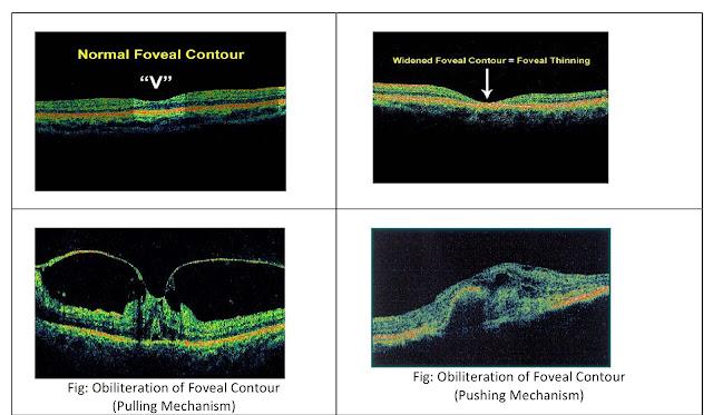 Foveal contour
