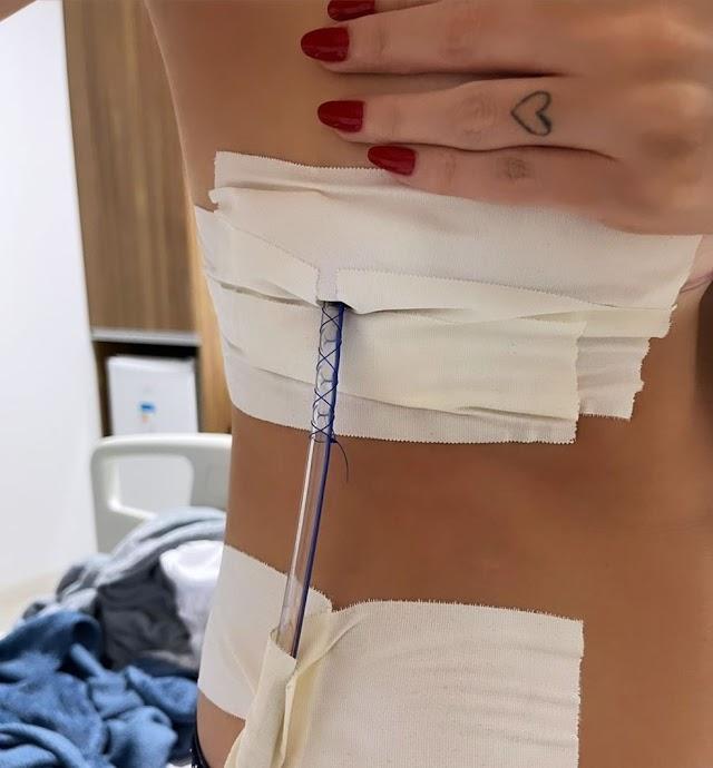 Empresária tem pulmão perfurado após realizar sessão de acupuntura