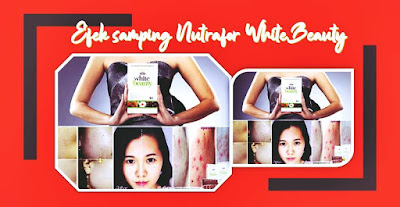 efek samping nutrafor white beauty review