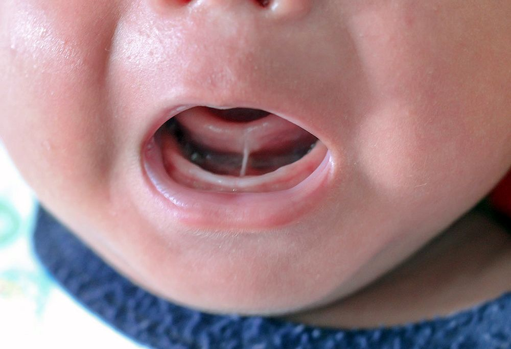 Pregnant-Oral-Health