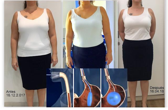 On peut perdre jusqu'à 12 kilos grâce à un ballon gastrique qui s'avale comme une pilule