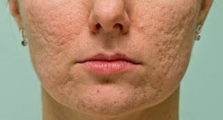 A Dermatologist's Tips for Acne Scars