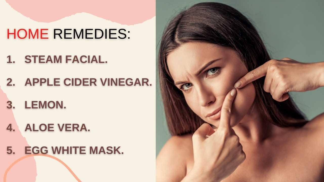 whiteheads-causes-how-to-get-rid-of-whiteheads-naturally-2020
