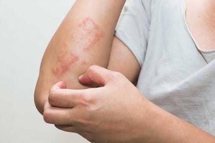 Penyebab Gatal Pada Kulit Yang Tak Kunjung Sembuh