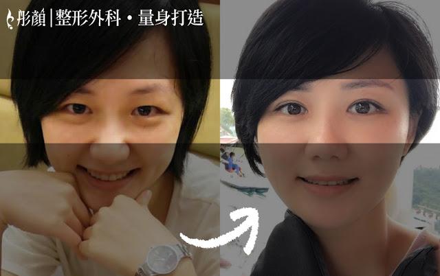 彤顏診所-割雙眼皮-開眼頭-雙眼皮手術推薦-雙眼皮推薦-中壢整形外科-桃園整形外科-眼神放大術-內眥皮
