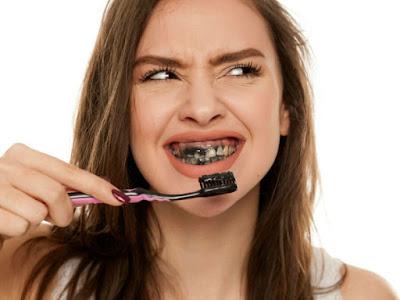 Nettoyer vos dents avec du charbon actif expose votre santé et plus que vous ne le pensez!