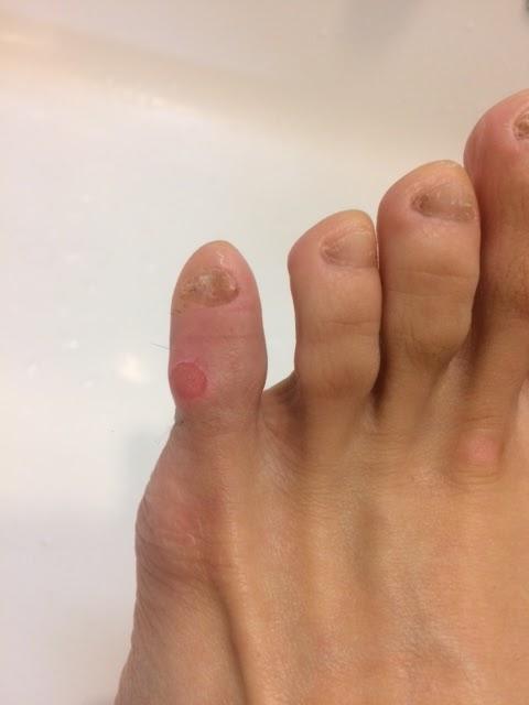 指 の 皮 が 剥ける