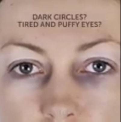 How To Remove Dark Circles Around The Eyes (Puffy Eyes)