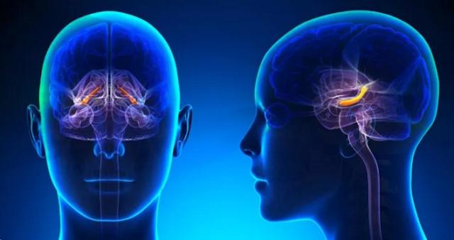 Bagaimana Pickleball bermanfaat bagi Penyakit Alzheimer dan Demensia