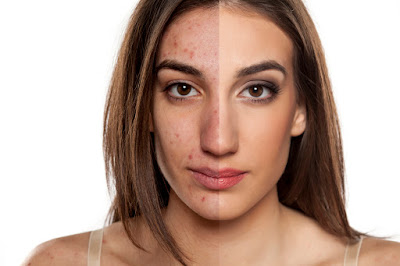 Savez-vous quel est votre type d'acné Découvrez-le et éliminez-le sans faute