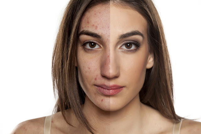 Découvrez ici votre type d'acné pour éliminez les boutons d'acné sans faute