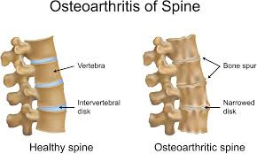 What is Osteophytosis - Definition, Symptoms, Causes, Treatment