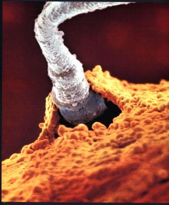 Фото плода: сперматозоїд