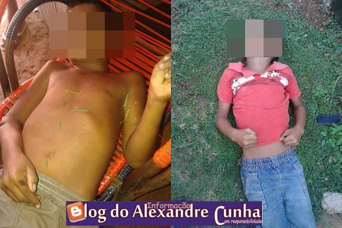 Trés crianças morrem eletrocutadas em Bacabal MA