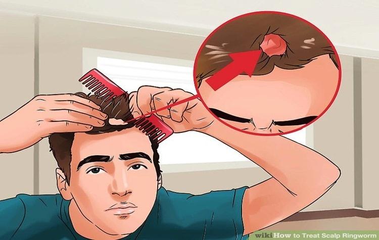 gatal tinae capitis di kepala
