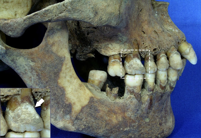 Teeth offer vital clues about diet during the Great Irish Famine