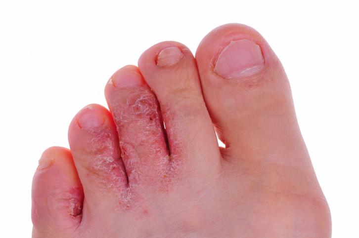 mengobati eksim pada kaki dan tangan yang menahun