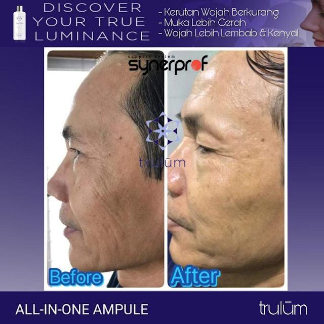 Bebas Bopeng Bekas Jerawat, Flek Hitam Tanpa Harus Laser Atau Ke Tempat Skin Care Di Colomadu Karanganyar