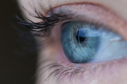 Cara mengatasi sakit mata merah dengan Cepat!