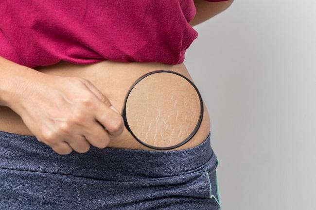 6-trik-menghilangkan-atau-mengurangi-stretch-mark