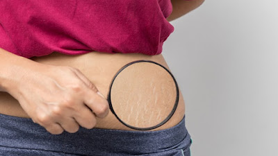 6 Trik Menghilangkan atau Mengurangi Stretch Mark