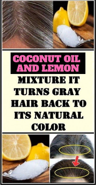 Coconut Oil And Lemon Juice – The Best Remedy For Gray Hair
