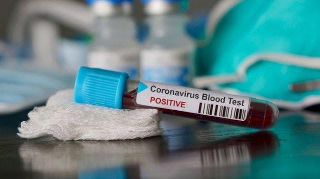 Usai Pasien Sembuh dari COVID-19 kembali dinyatakan Positif Tanpa Gejala