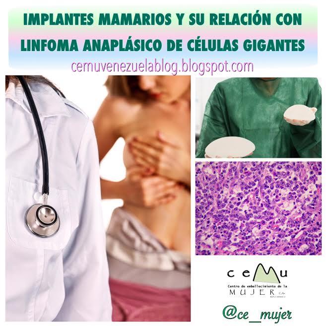 Implantes mamarios y embarazo