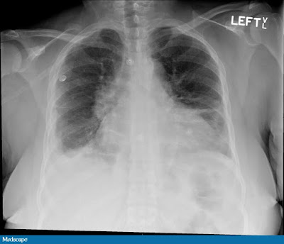 A chest x-ray showing right-sided pleural effusion and patchy linear opacity at the base of the left lung