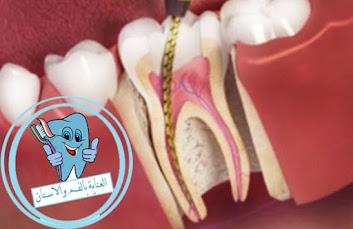 خراج الاسنان من المشاكل التي تصيب الفم, واسباب خراج الاسنان قد تكون بسبب التسوس وغيرها, ويمكن علاج خراج الاسنان بدون الم في البيت من خلال وصفات طبيعية سهلة خراج الاسنان ،علاج خراج الاسنان ،علاج خراج الاسنان بالثوم ،خراج الضرس ،خراج اللثة ،علاج خراج الضرس ،خراج تحت الضرس ،علاج خراج الاسنان المزمن ،علاج الخراج الاسنان ،علاج خراج اللثة ،مضاعفات خراج الاسنان ،علاج خراج الاسنان الداخلي ،اعراض خراج الاسنان ،خراج الاسنان الداخلي ،علاج خراج الضرس في البيت ،مدة شفاء خراج الاسنان ،الخراج السني ،خراج السن ،الخراج الاسنان ،خراج الاسنان عند الاطفال ،الخراج في الاسنان ،علاج الخراج في الاسنان ،خراج الاسنان بدون الم ،ما هو الخراج في الاسنان ،علاج سريع لخراج الاسنان ،علاج الخراج بالاسنان ،سبب خراج الاسنان ،علاج خراج السن ،علاج لخراج الاسنان ،ماهو الخراج الاسنان ،كيفية علاج خراج الاسنان