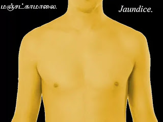 jaundice body