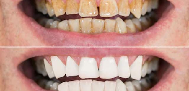 Why do teeth turn yellow and make teeth white and shiny?