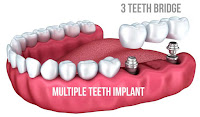 http://chennaidentalclinic.in/multiple-tooth-implants.html