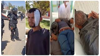 تطاوين: مواجهات عنيفة بين محتجين والأمن واستعمال الغاز المسيل للدموع