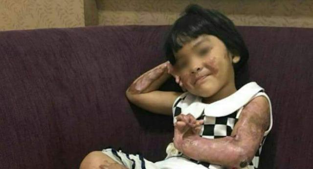 Anak Indonesia Korban Bom