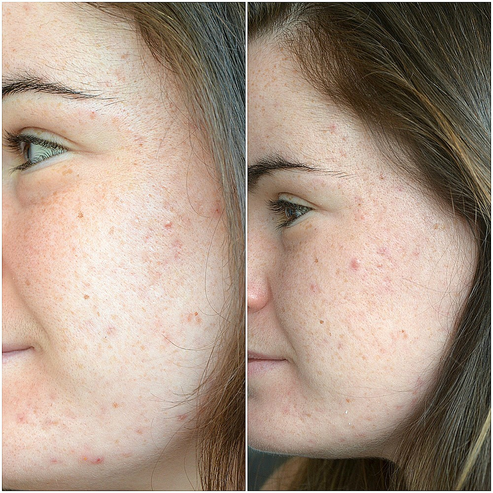 traitement contre l'acné comparaison entre mai et juin 2017 joue gauche