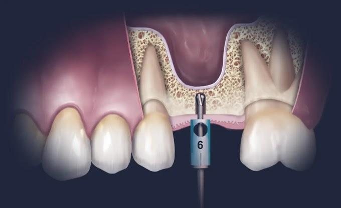 PDF: Use of Homologous Bone Grafts in Maxillary Sinus Lifting